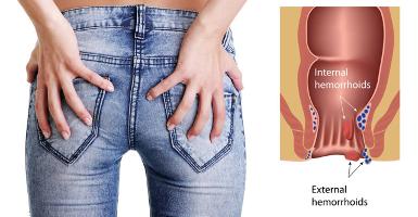 Il prurito in dorso passa da nervi