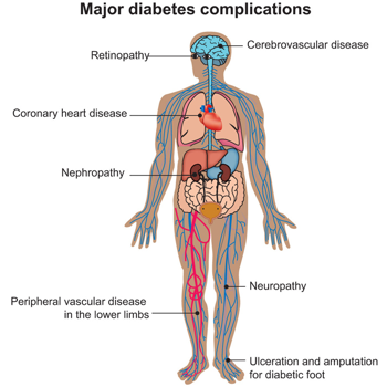 ernioplastica inguinale complicanze diabetes